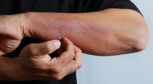 الجلد - عضو الجسم الأكبر: اختبر معلوماتك