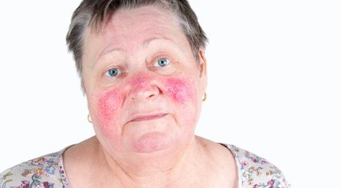 مرض الوردية: اختبر معلوماتك!