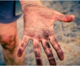 الجلد والبشرة: صح أم خطأ؟