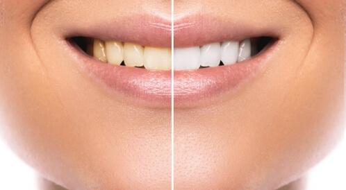 صح أم خطأ: هذه الأمور تسبب اصفرار الأسنان