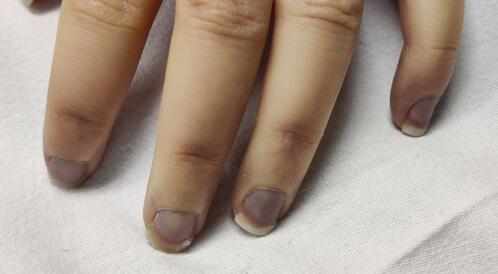 صح أم خطأ: العلاقة بين الأظافر والصحة