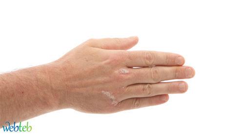 أنواع صدفية الجلد
