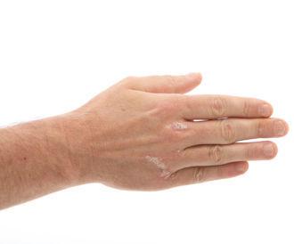 أسباب الطفح الجلدي الشائعة