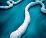 فيروس الايبولا!
