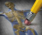 هشاشة العظام وعلاجها