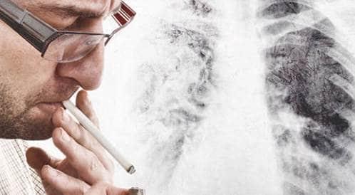 سرطان الرئة: تعددت الأسباب والموت واحد!