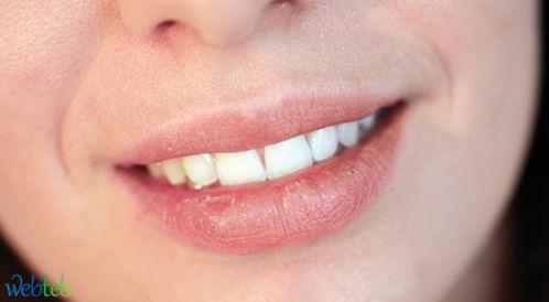 شاهدوا بالصور: اسباب جفاف الفم