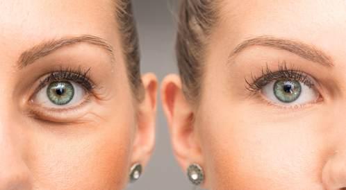 7 طرق للتخلص من انتفاخ العينين