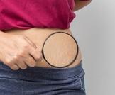 أسباب شائعة لتشققات الجلد