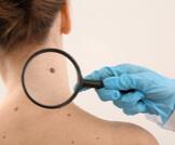 أعراض سرطان الجلد بالصور