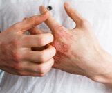 أعراض الأكزيما بالصور