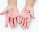 أمراض الجلد الفطرية بالصور