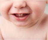 مرحلة التسنين عند الرضع بالصور