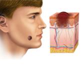 سرطان الجلد الحميد بالصور
