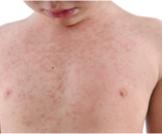 حساسية الجلد عند الأطفال بالصور