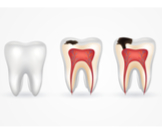 مراحل تسوس الأسنان بالصور