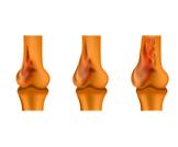 بالصور سرطان العظام
