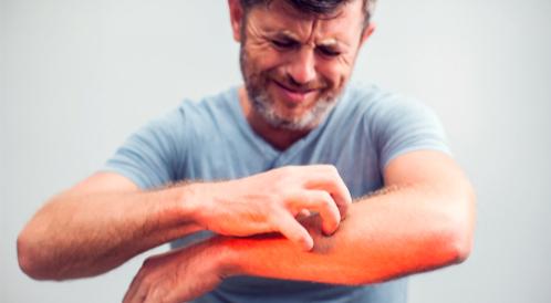 أنواع حساسية الجلد بالصور