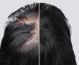 بالصور: خطوات زراعة الشعر