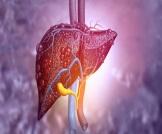 بالصور: أعراض أمراض الكبد على الجلد