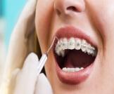 تركيب تقويم الأسنان بالصور