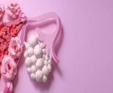 الفرق بين الكيس والورم على المبيض