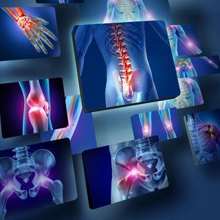 تاثير المرض على العظام
