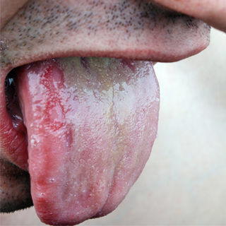 اعراض مرض الايدز وبعض التلوثات