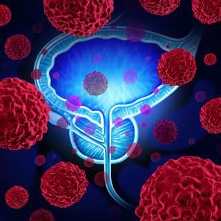 ما هي أسباب الإصابة  بسرطان البروستاتا؟