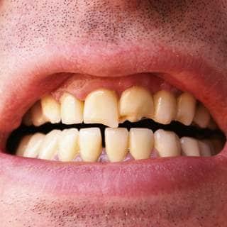 تصدع الأسنان
