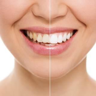 تنظيف الاسنان وتبيضها