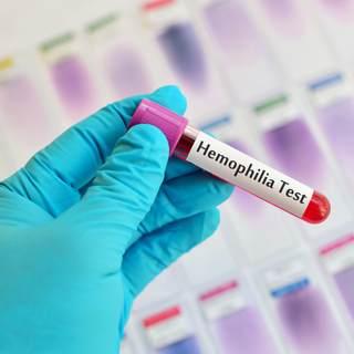 تشخيص الهيموفيليا