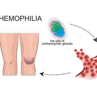 ما هي مضاعفات الهيموفيليا؟