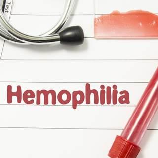 علاج الهيموفيليا