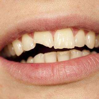 تكسر الأسنان