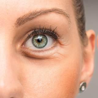 التخلص من انتفاخ العينين