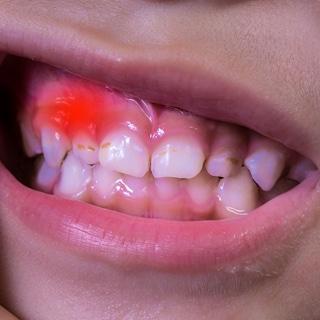 أمراض اللثة والأسنان