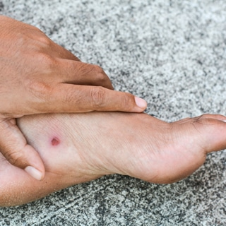 الجروح والتقرحات