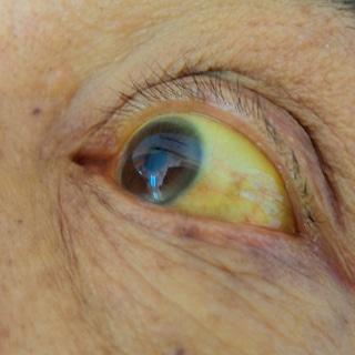 أعراض سرطان القنوات الصفراوية