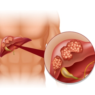 سرطان الكبد وتليف الكبد
