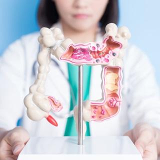 ما هو سرطان القولون والمستقيم؟