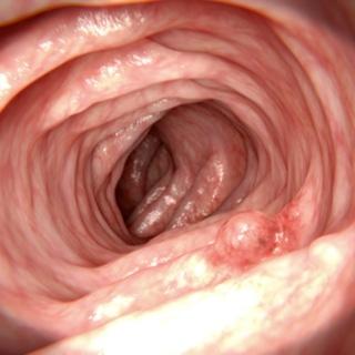 ما هي الأورام الحميدة؟