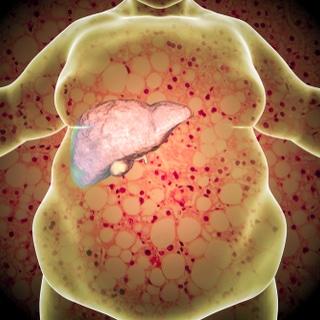 الكبد الدهني