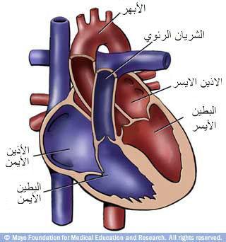 العيوب الخلقية الشائعة في القلب