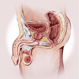 سرطان الخصية