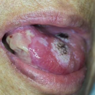 علامات سرطان الفم