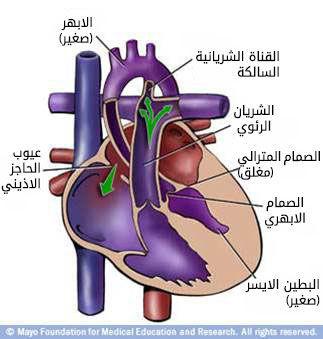 نقص التنسج في الجهة اليسرى من القلب