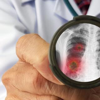 خطر الإصابة بفيروس كورونا الجديد