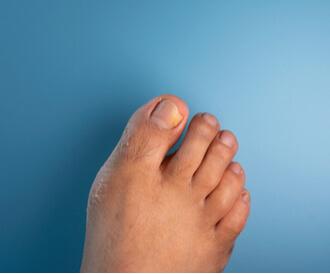 الإصابة بفطريات الأظافر