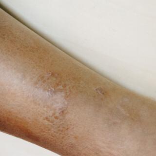 أعراض الأكزيما لدى ذوي البشرة الداكنة